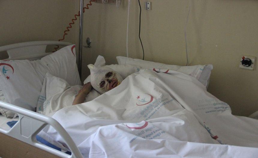Tüp patlaması sonucu yanan kadın 2 aydır iyileşeceği günü bekliyor